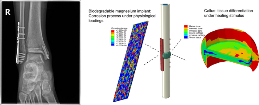 Biodegradable magnesium implant: Corrosion prcoess under physiological loadings